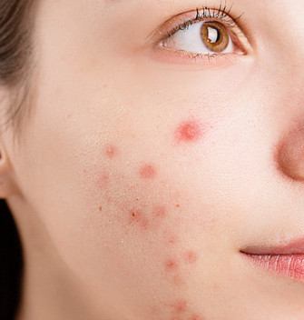 Teen Girl with Acne